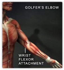 Golfers Elbow Tacoma WA