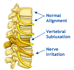 subluxation and back pain