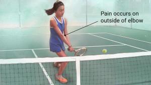 Tennis elbow Tacoma WA