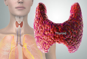 How to Treat Low Thyroid Hormone Naturally